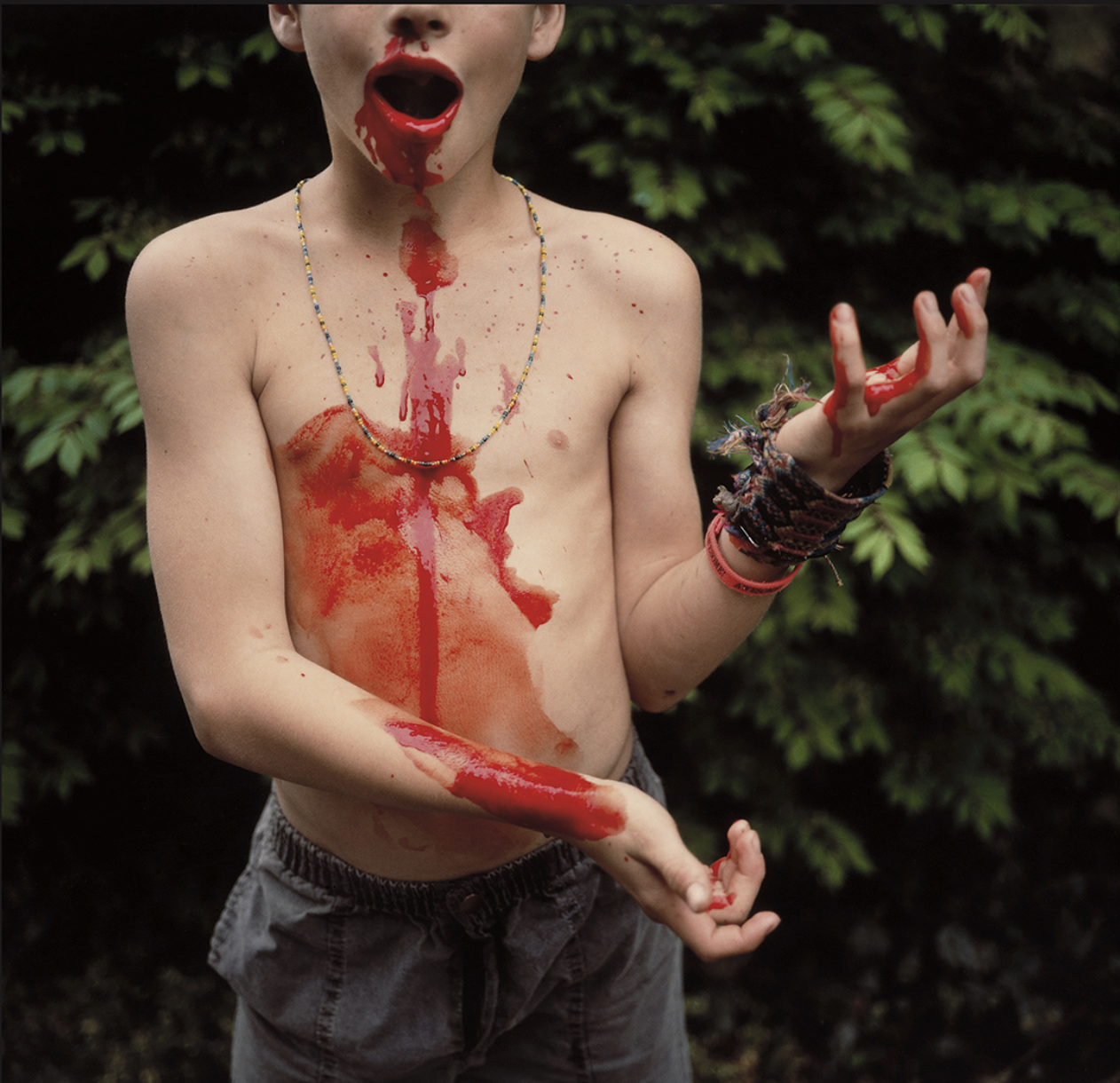 Bloody Nose 1991 Sally Mann Silver dye bleach print. Private collection. © Sally Mann